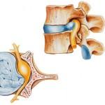 Lesiones discales
